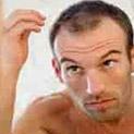 Доказано: Бирената мая спира косопада