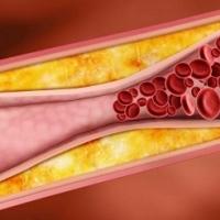 Атеросклерозата – какво представлява и как да се предпазим