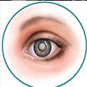 Безплатни профилактични прегледи за катаракта в Пловдив