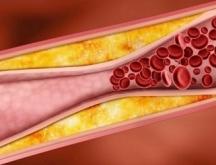 Атеросклерозата се изразява в образуване на натрупвания по вътрешната повърхност на стените на артериите